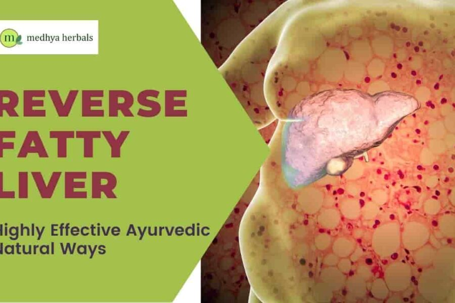 How to Reverse Fatty Liver? 8 Natural Ways to Make Your Liver Healthy Again