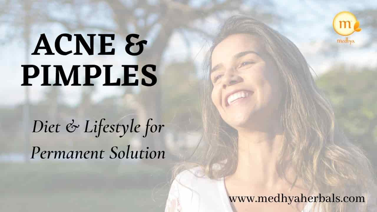 Get rid of Acne Forever with Ayurvedic Diet and Lifestyle