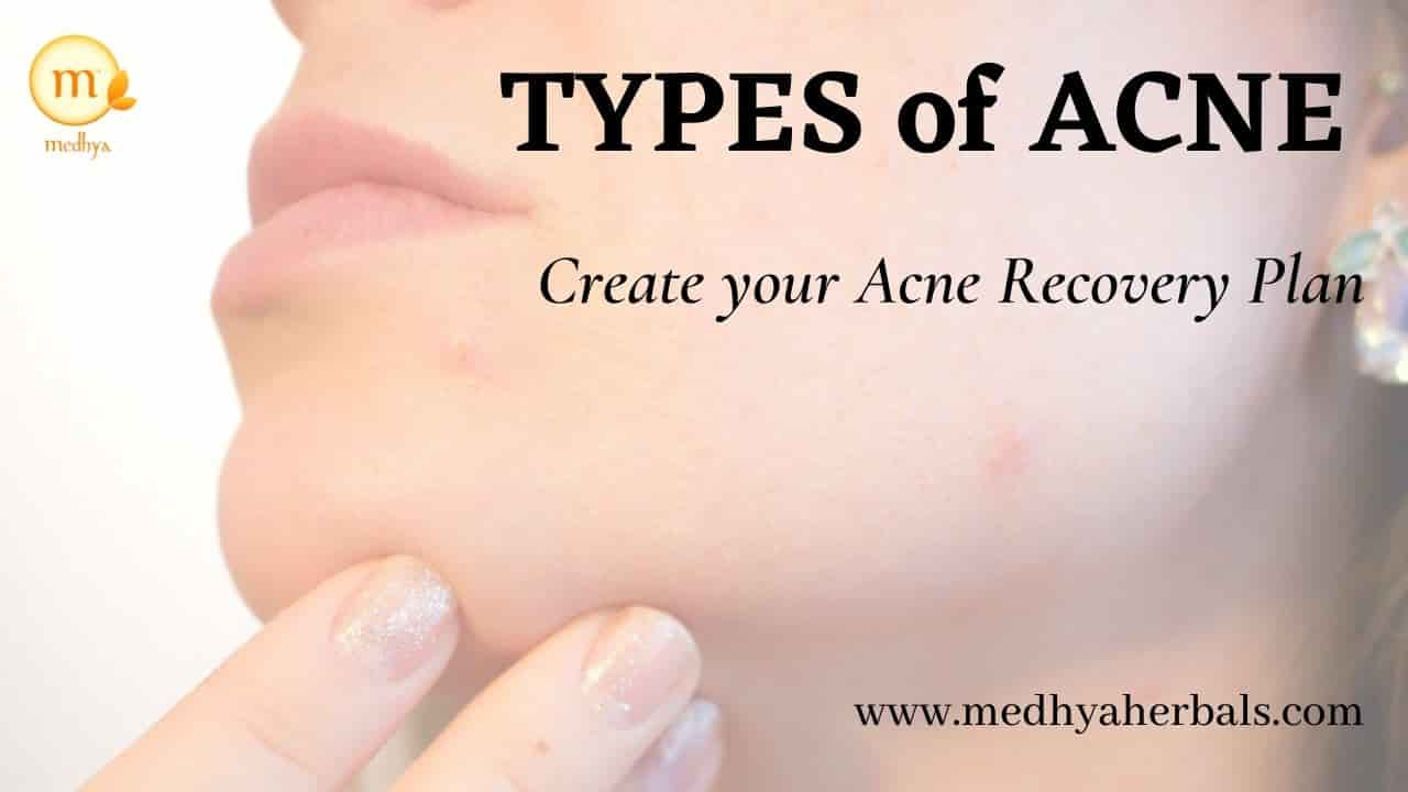 Understand the Types of Acne to Create your Personal Recovery Plan