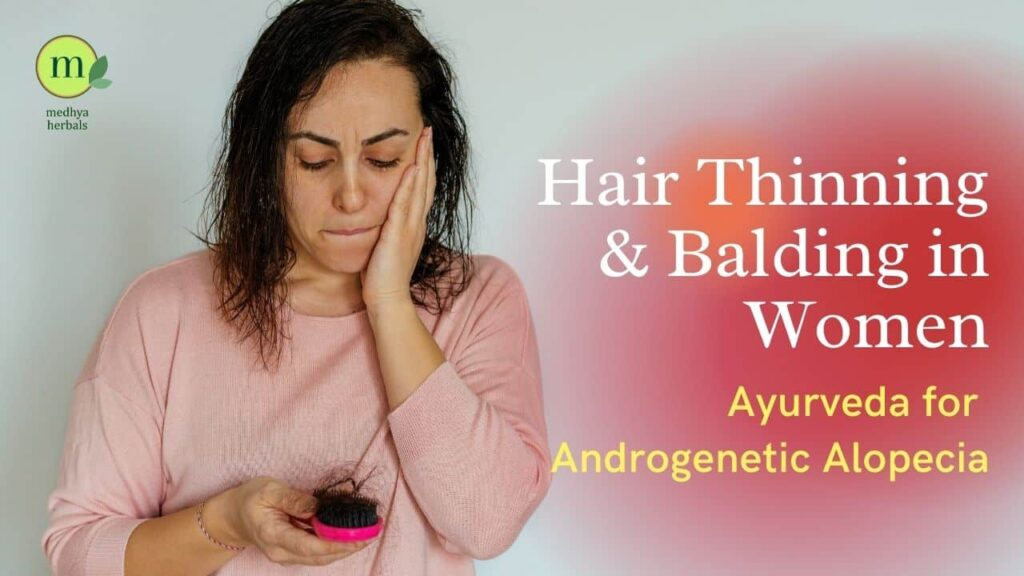 Androgenetic Alopecia - Hair Thinning- Balding in Women-min
