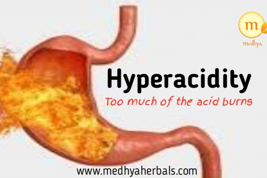 Heartburn: The Foot Soldier for GERD and Acid Reflux.