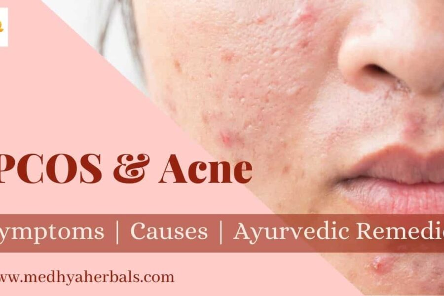 How to Treat PCOS Acne? 15 Herbs, Best Foods, Ayurvedic Tips for Natural Relief