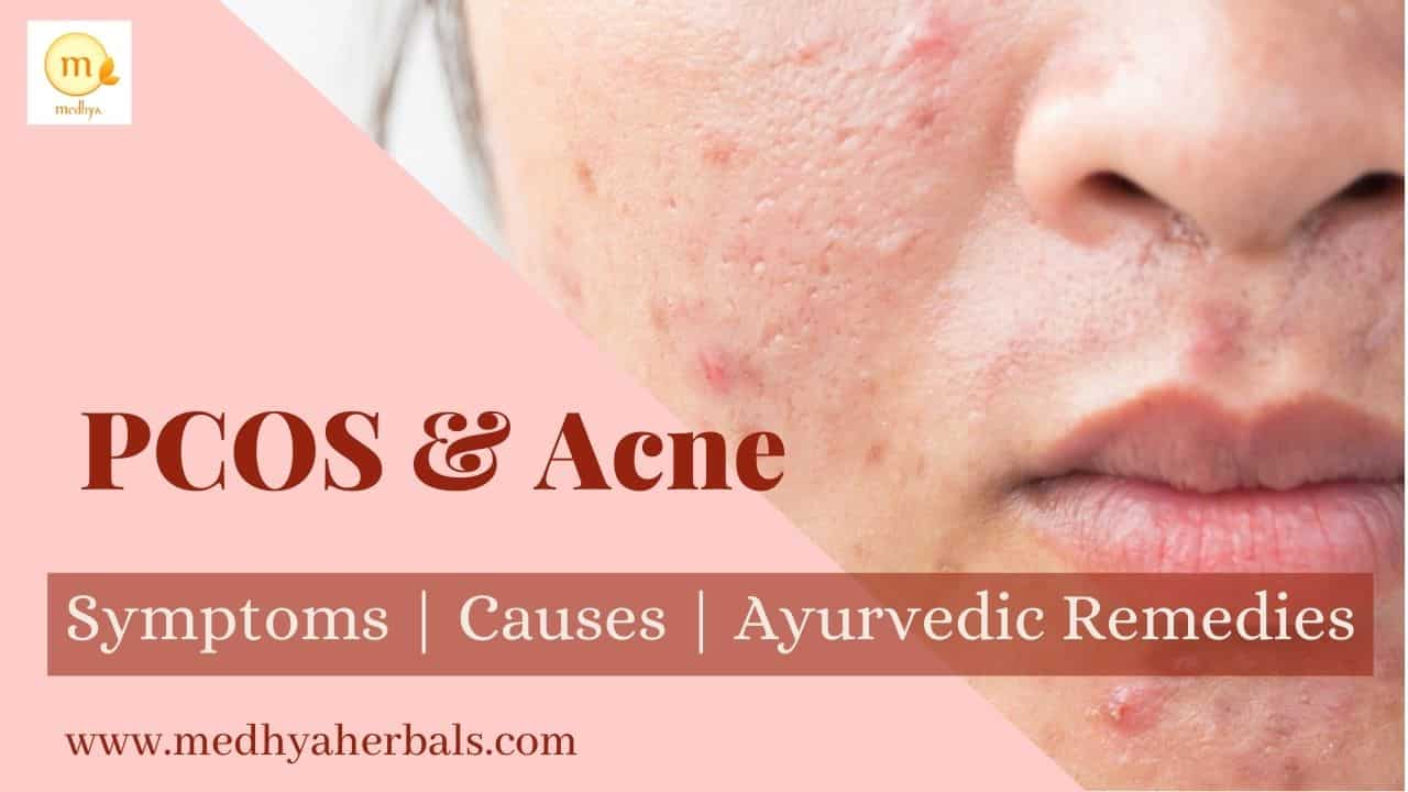 PCOS Acne Natural Treatment: Best Ayurvedic Diet and Lifestyle Tips