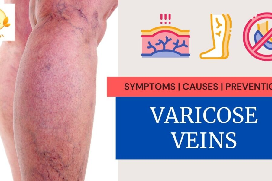 Varicose Veins Symptoms and Causes | Ayurvedic Treatment, Diet, Exercise