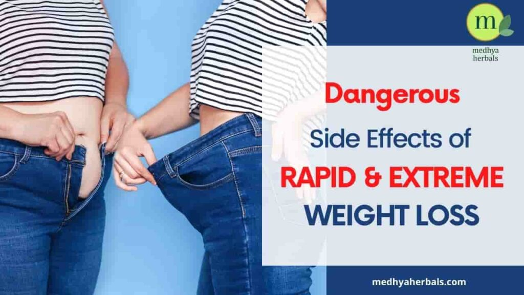 Side Effects of Rapid Weight Loss-min