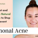 how to prevent hormonal acne diet and ayurvedic remedies-min