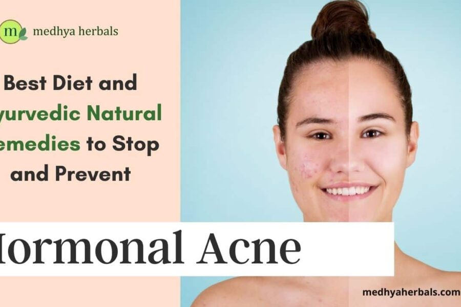 Hormonal Acne | Best Diet and Ayurvedic Natural Remedies to Stop Pimples